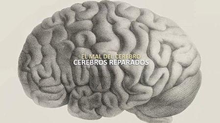 Cerebros-reparados_441275936_92726884_667x375